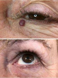 angioma eye