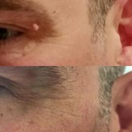 skin tag eye