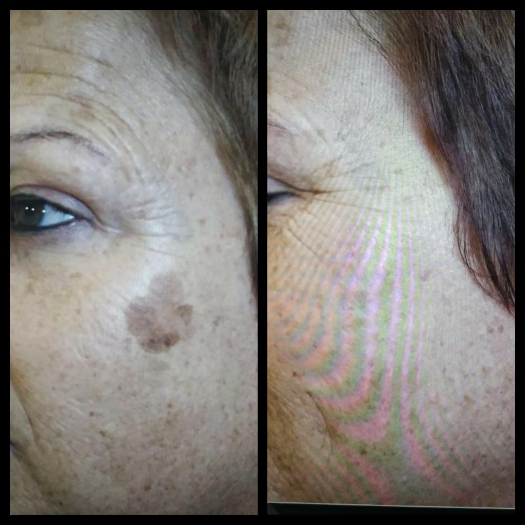Plasma age spot removal