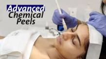 Advanced Chemical Peels